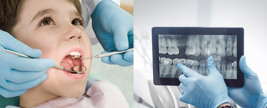 Child's teeth and dental x-ray