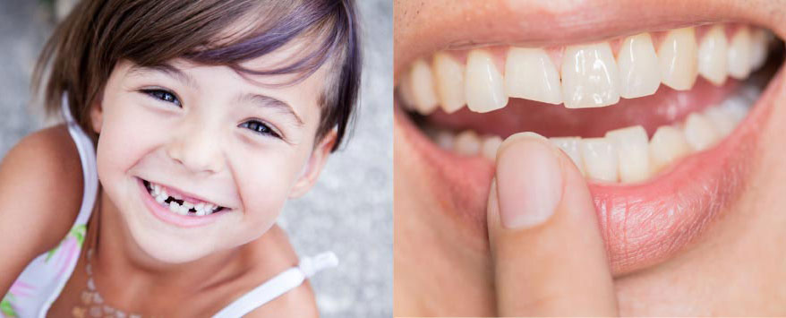 Children's teeth and chipped tooth repair | Bosham Clinic Dental
