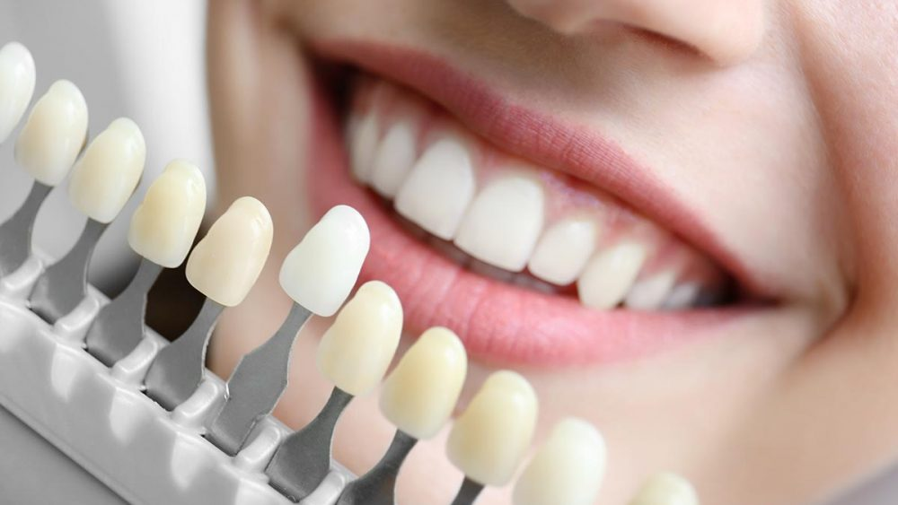 Teeth whitening and cosmetic dental work | Bosham Clinic Dental
