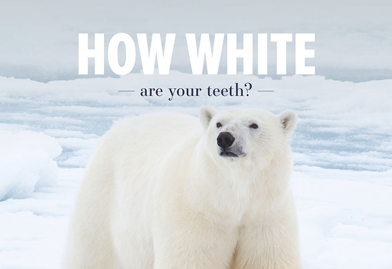 How white are your teeth? | Bosham Clinic Dental